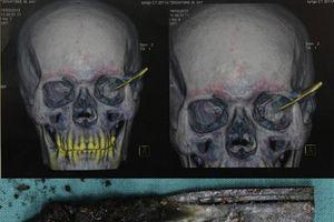 Rút dao găm trong hộp sọ 18 năm