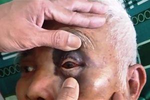 Thầy giáo đánh ông bà già nhập viện: Cảnh cáo cho nhớ