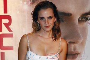 Emma Watson lộ miếng dán ngực khi đi dự công chiếu phim