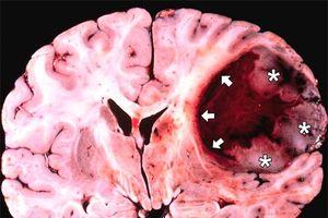 Nội soi lấy khối u não qua đường mũi cho bệnh nhân ở Phú Thọ