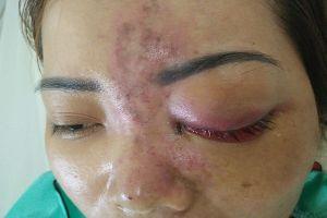TPHCM: Nguy cơ mù mắt vì tiêm chất làm đầy (filler) tại spa