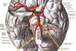 Can thiệp mạch máu não ngoạn mục giúp bé gái hồi sinh