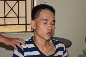Thừa Thiên Huế: Khởi tố vụ án con giết người trong đám tang cha ruột