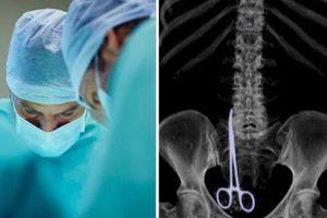 Bác sĩ để quên kéo phẫu thuật dài 15 cm trong người bệnh nhân suốt 6 tháng