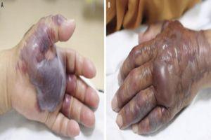 Ăn sushi cá, cụ ông 71 tuổi bị mất cánh tay