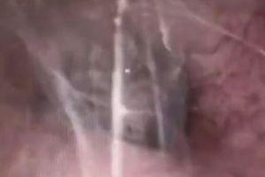 Rợn người cảnh nhện làm tổ, giăng tơ trong tai người