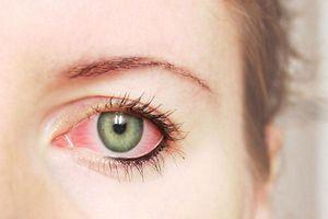 Thói quen hàng ngày gây ảnh hưởng xấu tới mắt
