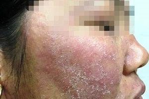 Mặt nữ nhân viên khách sạn 20 tuổi lở loét, mọc đầy lông vì trị trứng cá