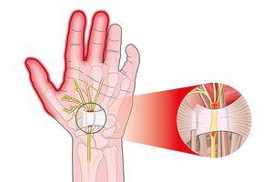 Cách dễ dàng để cải thiện chứng đau đường hầm cổ tay