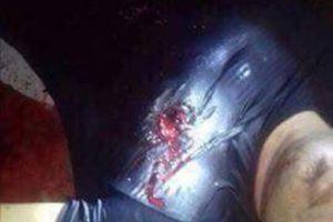 Hải Phòng: Mâu thuẫn tiền bạc, sếp xả súng bắn chết lái xe