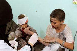 Mỹ bảo vệ quan điểm hỗ trợ quân sự liên quân Arab tại Yemen