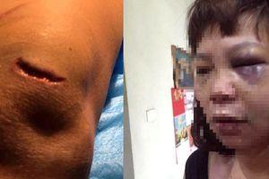 Bắt tạm giam người chồng vũ phu đánh vợ trọng thương ở Quảng Ninh