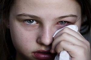 Những sai lầm phải trả giá đắt khi tự chữa đau mắt đỏ tại nhà