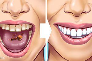 10 cách đơn giản giúp loại bỏ cao răng tại nhà