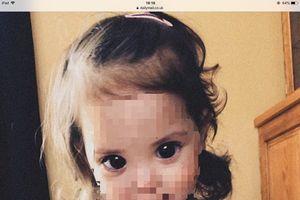 Sự thật đau lòng đằng sau đôi mắt to tròn, đen láy của bé gái